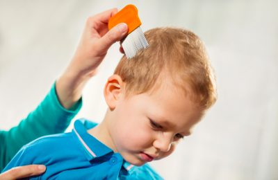 How to remove lice naturally?